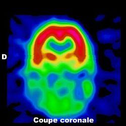 scintigraphie cérébrale de perfusion et démence de type fronto-temporal