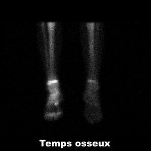 Algodystrophie Froide Du Membre Inferieur Et Scintigraphie