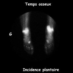 Pieds incidence plantaire