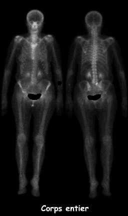 fracture apophyse transverse d10