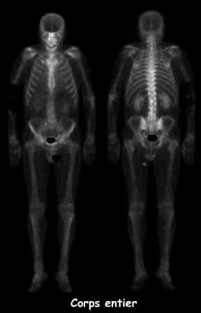 Métastase ostéolytique d'une vertèbre thoracique, cancer ...